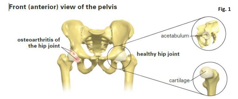 diagram of hip and pelvis