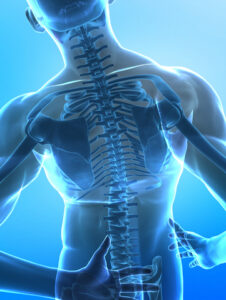 Spine Surgery Dr. Michael Doyle Louisville KY
