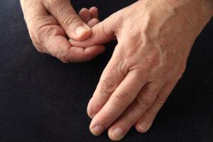 Thumb CMC Arthroplasty Louisville KY