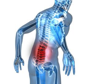 Back Pain Doctor Jeffersonville IN